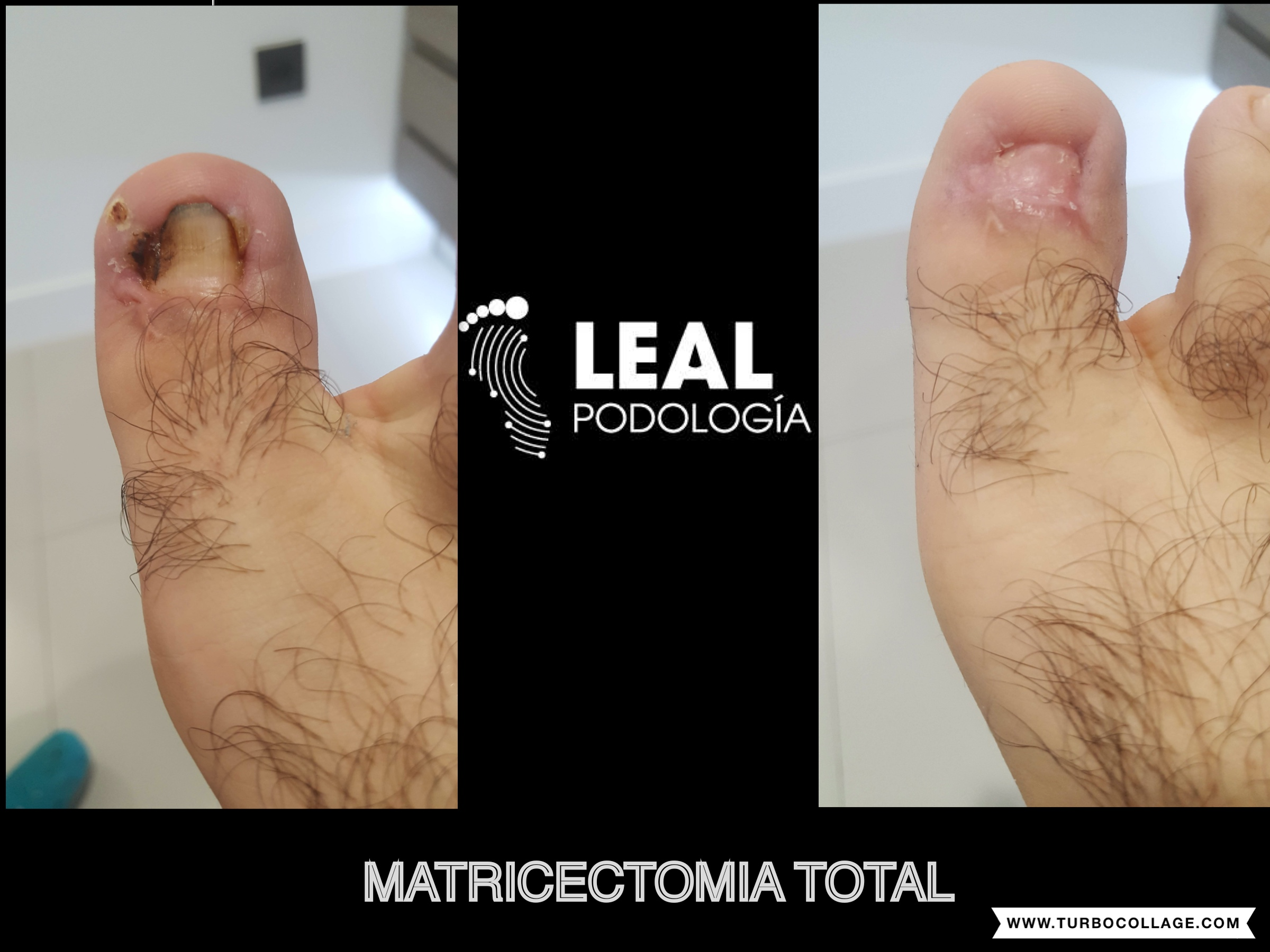 Matricectomia total