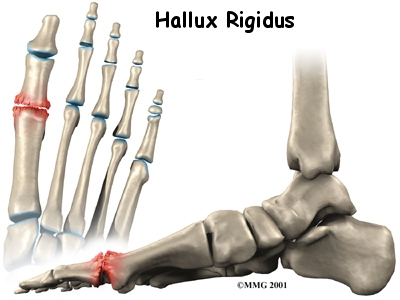 foot hallux rigidus intro01